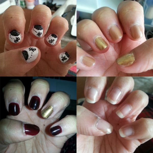 How I overcame my nailbiting habit