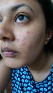 PMD Personal Microderm Before